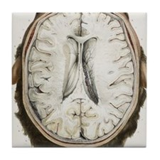 Brain ventricles, 1844 artwork Tile Coaster
