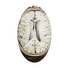 Brain ventricles, 1844 artwork Oval Car Magnet