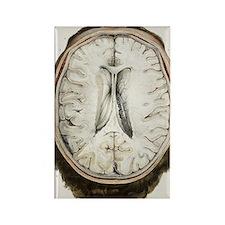 Brain ventricles, 1844 artwork Rectangle Magnet