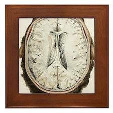 Brain ventricles, 1844 artwork Framed Tile