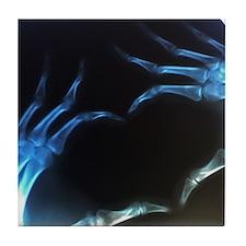 Heart Shape X-Ray Tile Coaster