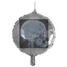 Normal skull, X-ray Balloon