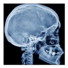 "Normal skull, X-ray Square Car Magnet 3"" x 3"""