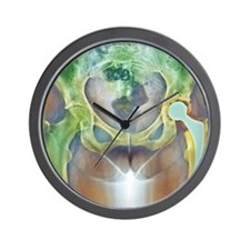 Loosened hip replacement, X-ray Wall Clock