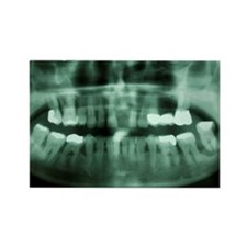 Dental radiograph Rectangle Magnet
