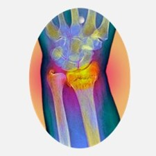 Broken wrist, X-ray Oval Ornament