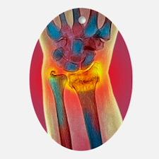 Broken wrist, X-ray Oval Ornament