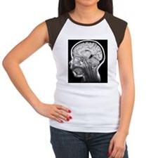 Child's brain, MRI scan Women's Cap Sleeve T-Shirt