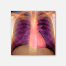 "Lungs and heart, X-ray Square Sticker 3"" x 3"""