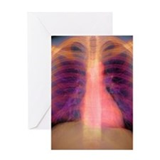 Lungs and heart, X-ray Greeting Card