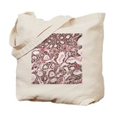 Lactating breast tissue, light micrograph Tote Bag