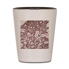 Lactating breast tissue, light microgra Shot Glass