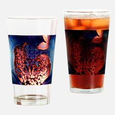 Large intestine, X-ray Drinking Glass