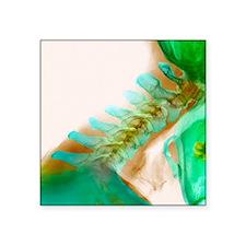 "Neck vertebrae extended, X- Square Sticker 3"" x 3"""