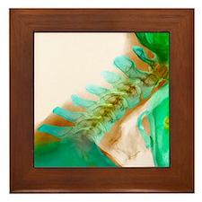 Neck vertebrae extended, X-ray Framed Tile