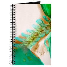 Neck vertebrae extended, X-ray Journal