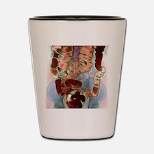 Large intestine, X-ray Shot Glass