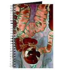 Large intestine, X-ray Journal
