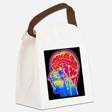 MRI scan of normal brain Canvas Lunch Bag