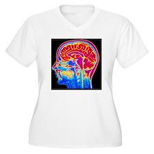 MRI scan of norma T-Shirt