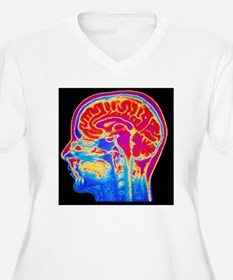 MRI scan of norma T-Shirt