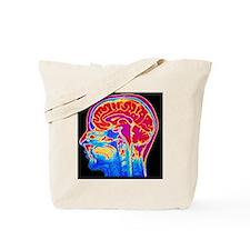 MRI scan of normal brain Tote Bag