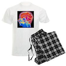 MRI scan of normal brain Pajamas