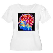 MRI scan of n T-Shirt
