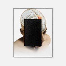 Placebo effect in the brain, artwork Picture Frame
