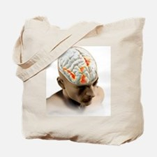Placebo effect in the brain, artwork Tote Bag