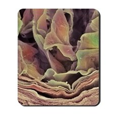 Skin surface, SEM Mousepad