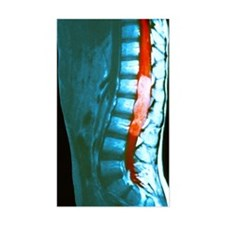 Spinal cord cancer MRI Decal