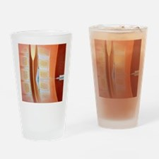 Spinal epidural anaesthetic Drinking Glass