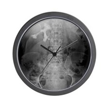 Staghorn kidney stone, X-ray Wall Clock