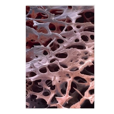Spongy bone, SEM Postcards (Package of 8)