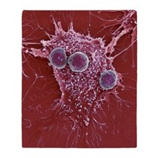 T lymphocytes and cancer cell, SEM Throw Blanket