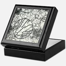Transmission electron micrograph of m Keepsake Box