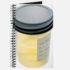 Urine sample Journal