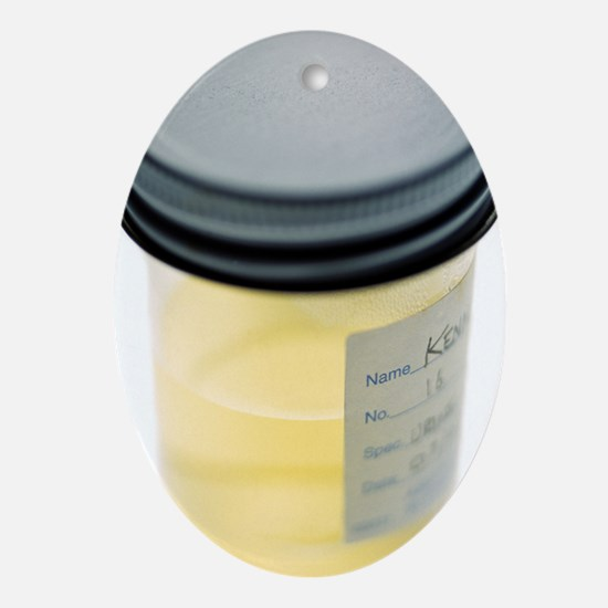 Urine sample Oval Ornament