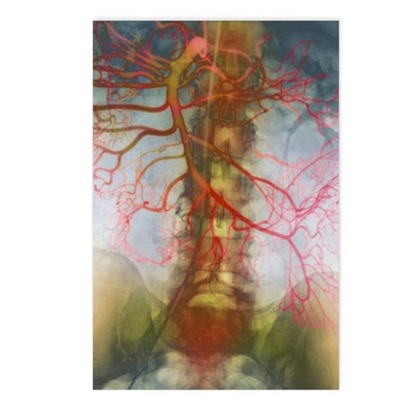 X-ray of arteries Postcards (Package of 8)