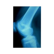 X-ray of normal knee joint of 15- Rectangle Magnet