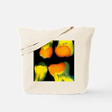 X-ray of teeth Tote Bag