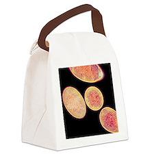 Clostridium difficile bacteria, T Canvas Lunch Bag