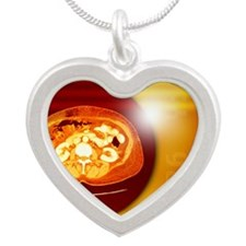 Kidneys, CT scan Silver Heart Necklace