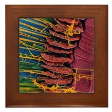 Iris of the eye, SEM Framed Tile