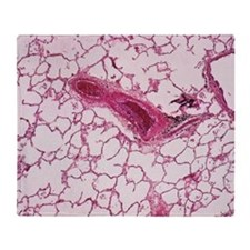 Lung alveoli Throw Blanket