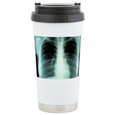 Lungs, X-ray Travel Mug