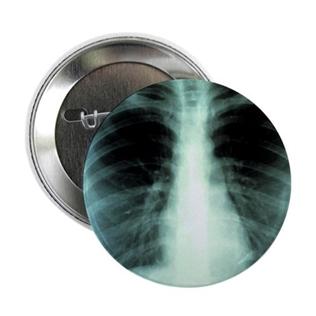 "Lungs, X-ray 2.25"" Button"
