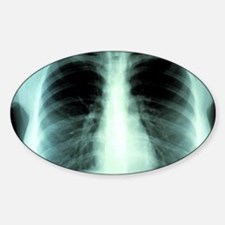 Lungs, X-ray Decal
