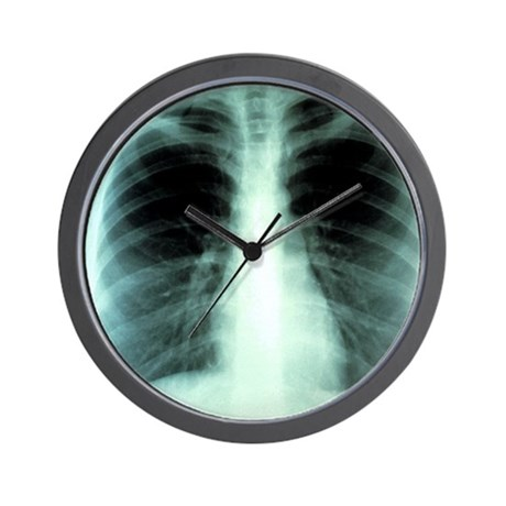 Lungs, X-ray Wall Clock